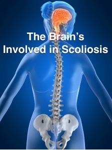 Brain Involved In Scoliosis