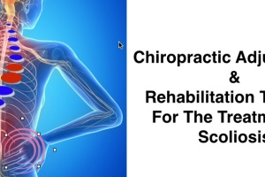 Combination of manipulative and rehabilitative therapy for Scoliosis