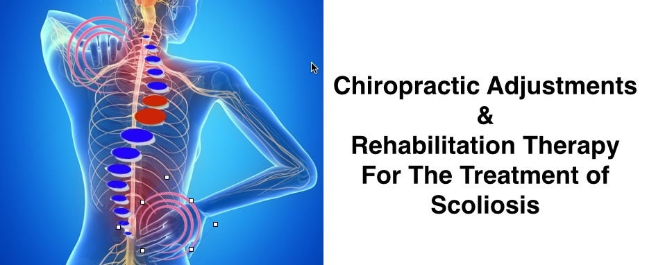 Chiropractic Adjustments & Rehab for Scoliosis