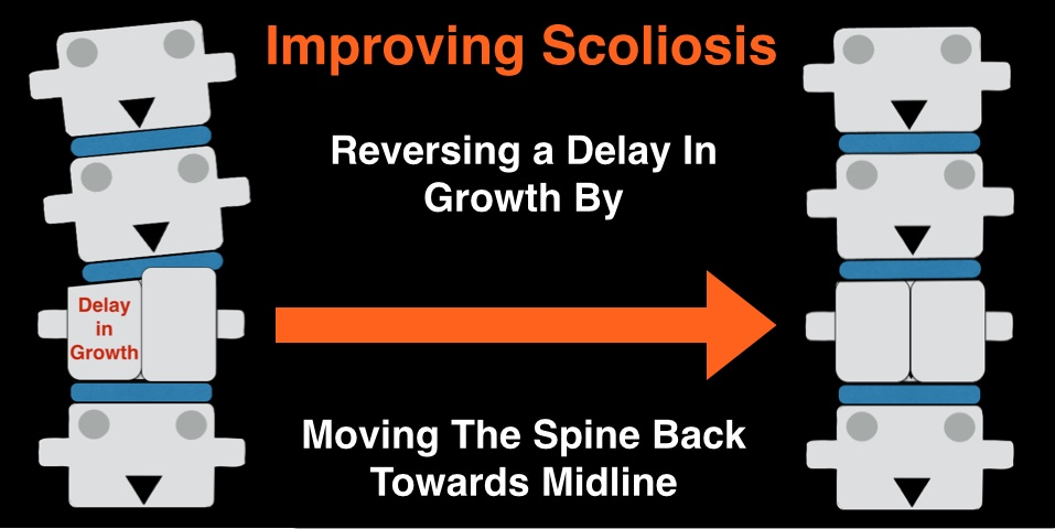 Improving Scoliosis by Moving Towards Midline