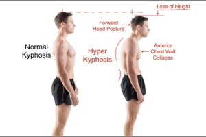 Treatment for Kyphosis