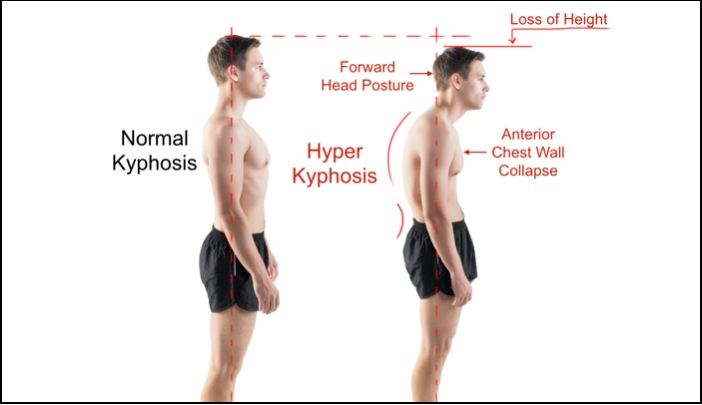 Kyphosis - Normal vs Hyper