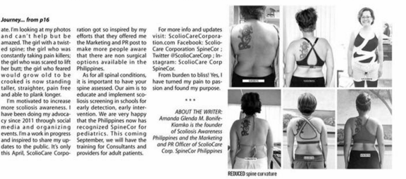 Scoliosis Journey Page 2