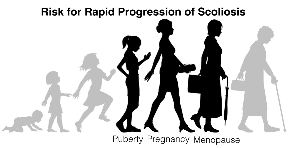 Risky Times for Scoliosis Progression - Puberty, Pregnancy and Menopause 2