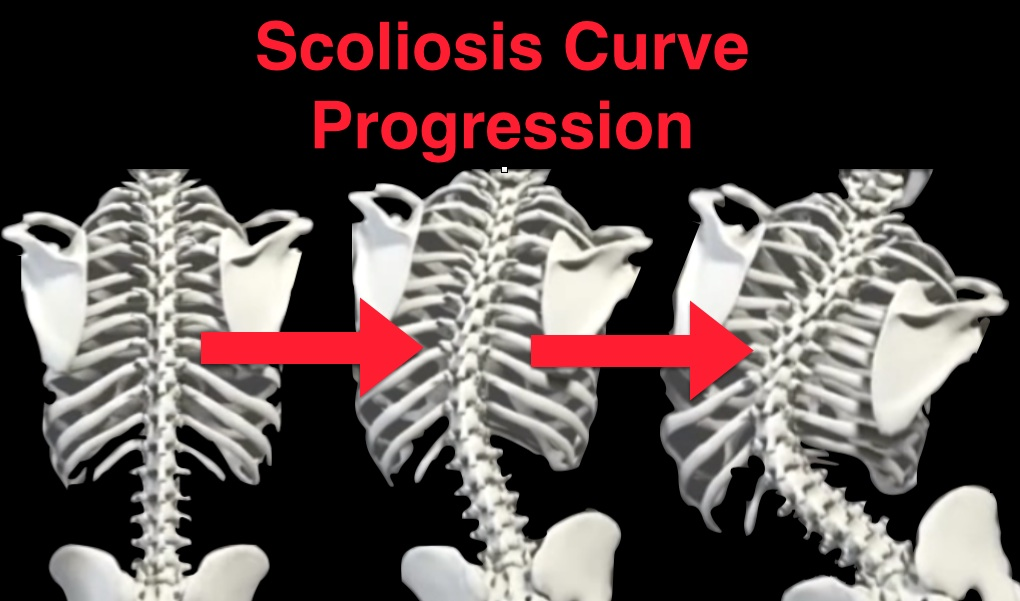 Scoliosis Curve Progression