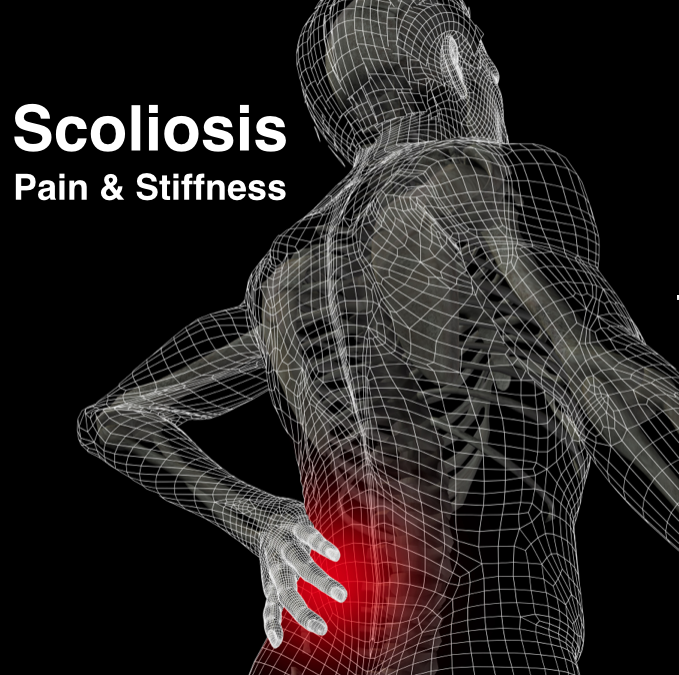 Active Release Technique for Scoliosis