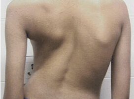 Scoliosis Surgery Does Not Improve Symptoms of Deformity