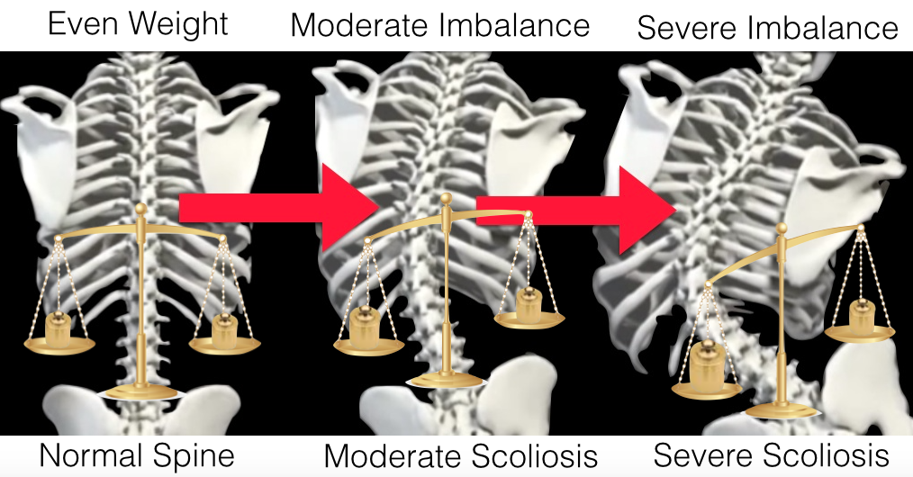 Scoliosis Animation