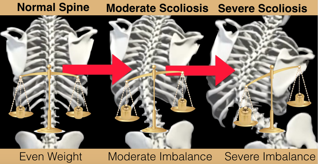 Scoliosis Weight Imbalances