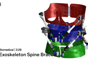 Exo-Skeleton Dynamic Scoliosis Brace Prototype – Video