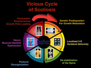 Vicious Cycle of Scoliosis