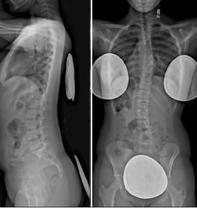X-rays of Scoliosis AP and Lat